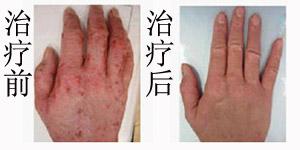 深圳五洲医院中医皮肤科治疗