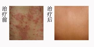 中医调理治疗顽固性湿疹