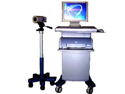 电子阴道镜检查