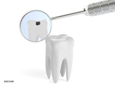补牙一次搞不定?来回补牙的原因在这里