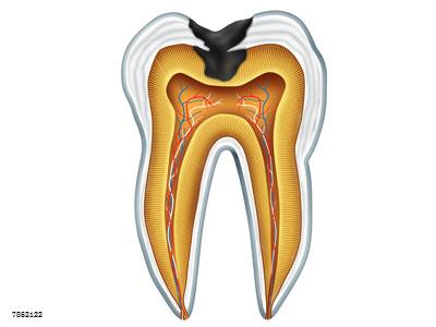 做完根管治疗要做牙冠,牙医告诉你原因