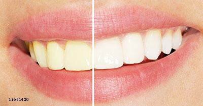 怎样的牙齿才需要美白?(