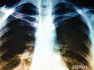 八种常见肺炎的X线诊断
