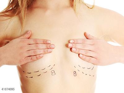 乳腺癌,两癌筛查