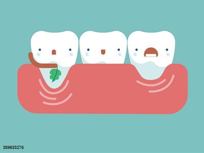 什么情况下需要洗牙?