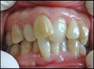 牙齿矫正案例