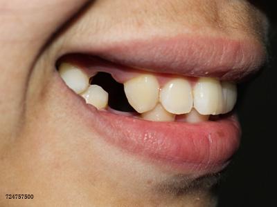 """缺牙不管,小心骨头被""""吃""""掉"""