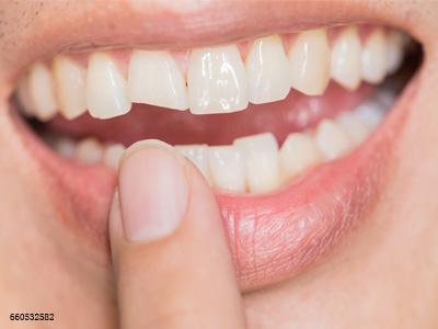 """外伤造成牙齿脱落后,牙齿还能再""""种""""回去吗?"""