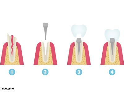 了解完种植牙,你就不会嫌弃种植牙贵了?