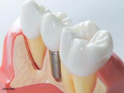 种植牙贵到离谱?一起来了解种植牙价格的内幕吧