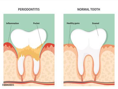 牙龈反复出血怎么办?预防工作要做好