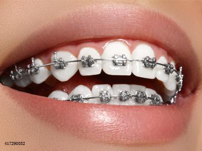 看完矫牙期的刷牙要求,才明白为什么要多花钱做矫牙
