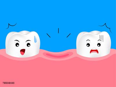 想知道怎样才能让种植牙的使用寿命破纪录吗?