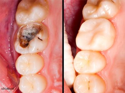 补牙材料脱落,什么原因导致的?