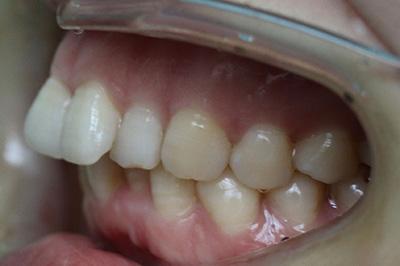 龅牙是口腔不良习惯造成的,还是遗传?