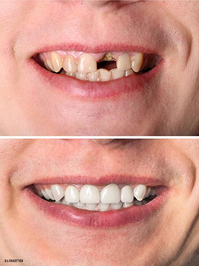 为什么医生修复一颗缺牙却要磨两边的牙齿?