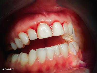 洗牙后牙齿会松动?恰好是你牙洗少了