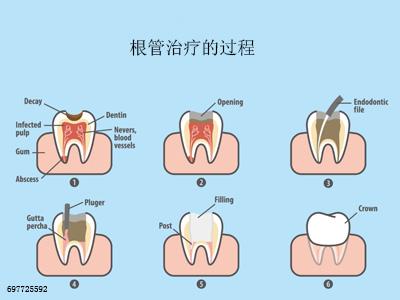 做完根管治疗,牙齿还能坚持多久?