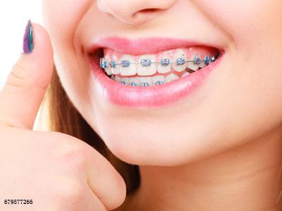 上牙不齐,只矫不齐的牙齿是不是就能省钱了?