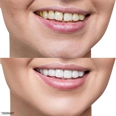 牙缝大漏财?这些方法能帮你守住
