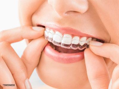 这些戴过牙套的人才懂的痛,你有经历过吗?