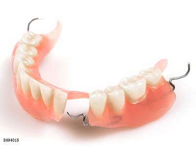 老人看过来,这里有活动假牙护理注意事项的攻略!(