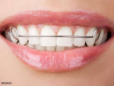 矫完牙不带它,矫牙的钱就白花了!