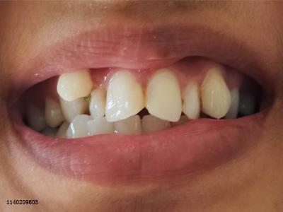这种需要矫牙的情况一般都被人们忽视了
