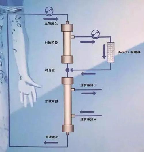 血液净化治疗模式HFR治疗尿毒症更高效