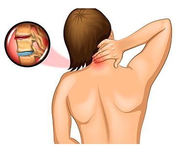 怀疑患上颈椎病,如何检查确诊?