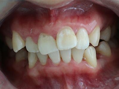 青少年牙齿不齐矫正案例