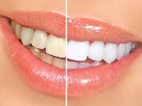 牙齿美白、牙黄